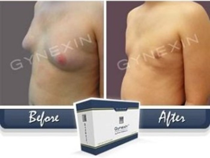 Where to Buy Gynexin Online?